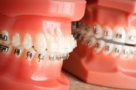 Aparat dentar - modele